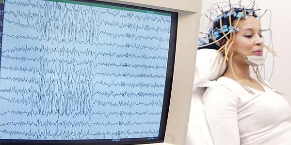 فحص كهرباء الدماغ يحدد المنطقة  المعتلة